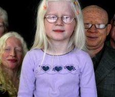 Albino: blanco, rubio y con los ojos azules