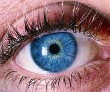 Qué es la miopía