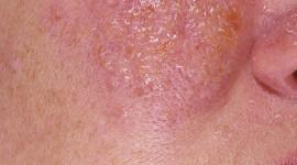 Piel roja y escamada