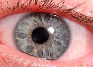 analisis iridologia