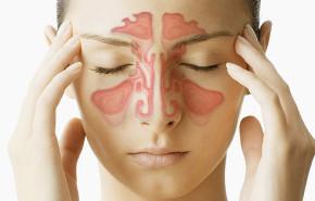 ¿Cómo es la operación de sinusitis?